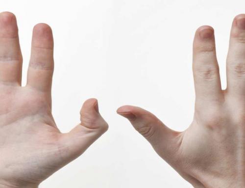 Артроза на пръстите на ръцете